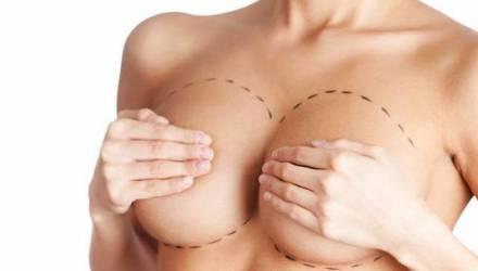 implantes de silicone nas mamas