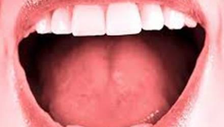doenças pela boca