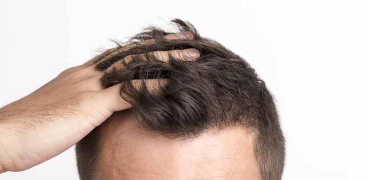 tratamento queda de cabeloo