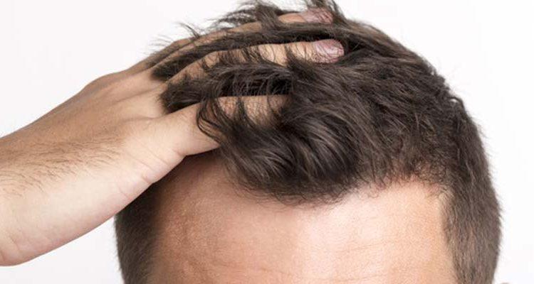 anabolizante queda de cabelo
