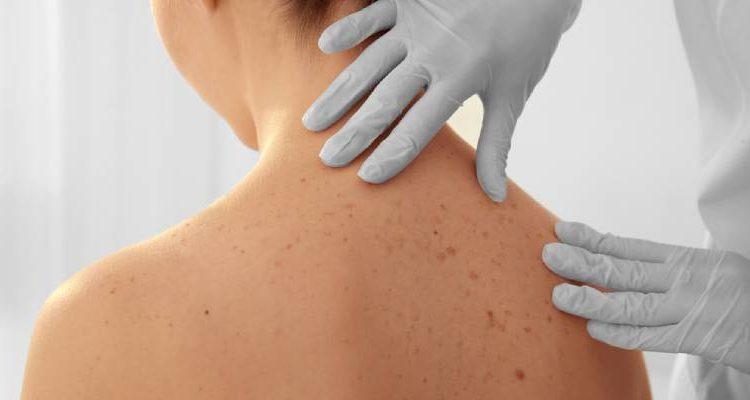biópsia de pele